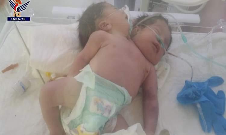 وفاة التوام السيامي المولود الاسبوع الماضي بمستشفي فلسطين للامومة والطفولك بالعاصمة صنعاء